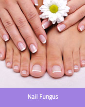 Treatable Conditions Cleveland - Nail Fungus