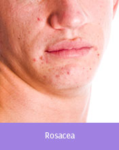 Treatable Conditions Cleveland - Rosacea