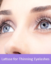 Treatable Conditions Cleveland - Latisse for Thinning Eyelashes