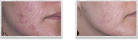 Dermatologist Cleveland - Before and after 01