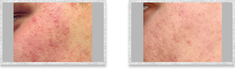 Dermatologist Cleveland - Before and after 02