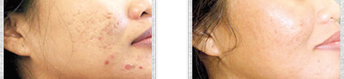 Before and after Profractional Treatment case3