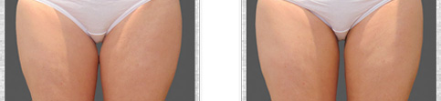 Before and after Coolsculpting case1