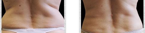 Before and after Coolsculpting case7