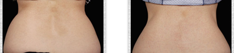 Before and after Coolsculpting case8