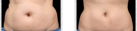 Before and after Coolsculpting case9
