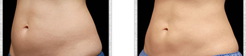 Before and after Coolsculpting case10