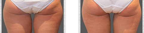 Before and after Coolsculpting case11