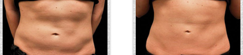 Before and after Coolsculpting case13