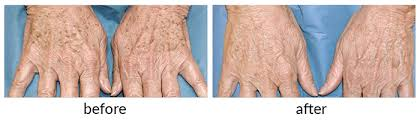 Seriously Skin Cosmetic and laser Laser Hands Offers