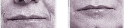 Juvederm Volbella Before and After 01