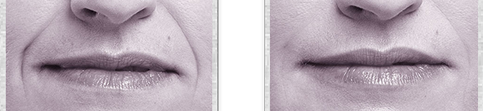 Juvederm Volbella Before and After 03