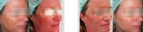 Before and after Sciton Micro Laser Peel case5