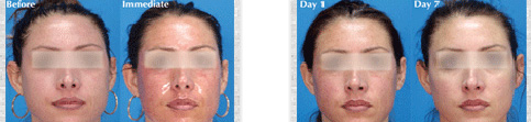 Before and after Sciton Micro Laser Peel case12