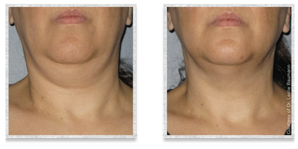 Ultherapy 174 Cleveland Oh Skin Tightening Amp Lifting