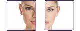 BBL/Photo Facials before after