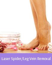 Laser Spider/Leg Vein Removal