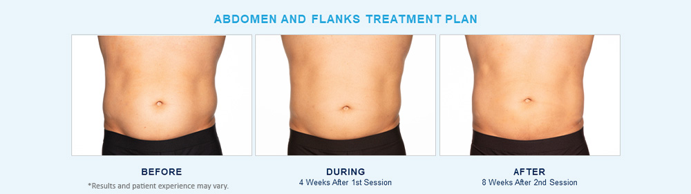 CoolSculpting Elite before after results Chagrin Falls, OH cause 1