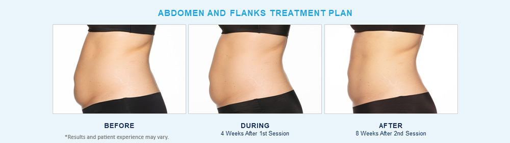 CoolSculpting Elite before after results Chagrin Falls, OH cause 2