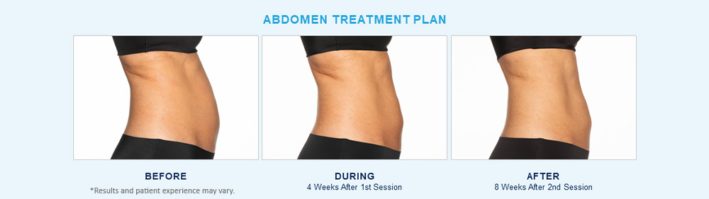 CoolSculpting Elite before after results Chagrin Falls, OH cause 3