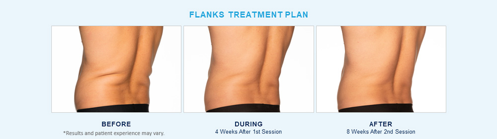 CoolSculpting Elite before after results Chagrin Falls, OH cause 4