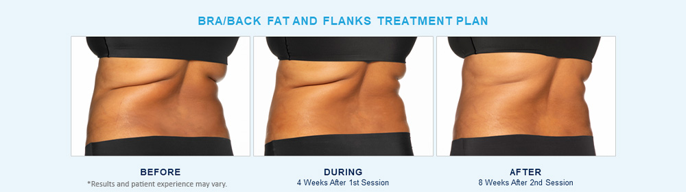CoolSculpting Elite before after results Chagrin Falls, OH cause 5