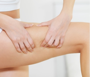 woman holding her thigh before treatment
