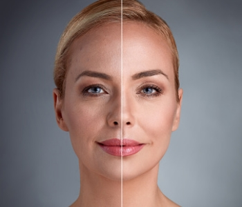 Improve your skin with Photofacials in Cleveland