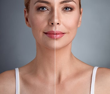 Using Juvéderm injections for facial rejuvenation in Cleveland