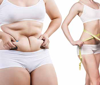 Contact Seriously Skin Cosmetic and Laser Medicine today to learn about the benefits of using cryolipolysis to achieve the body you've worked hard to achieve