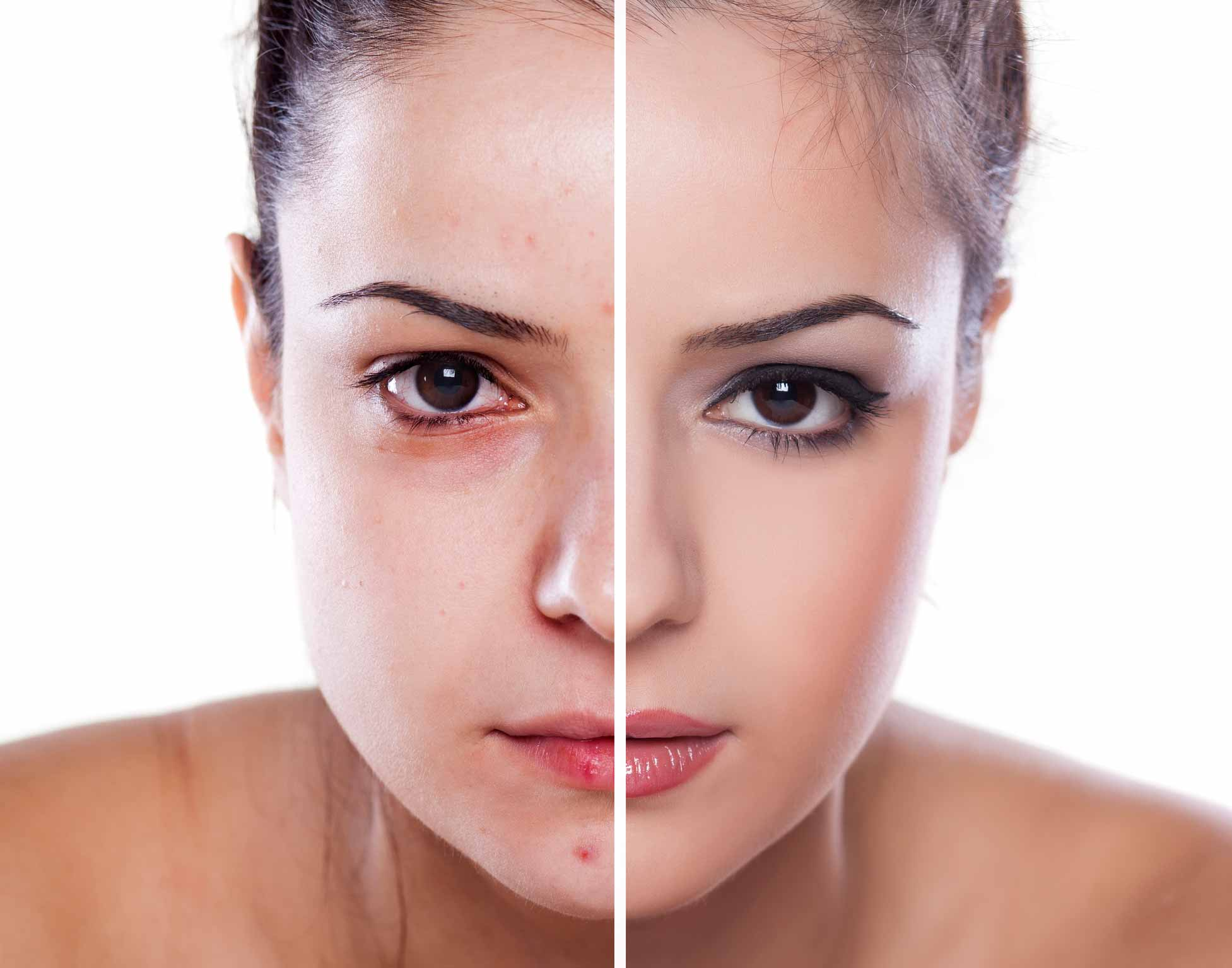 The Revanesse Versa filler is a hyaluronic acid filler used by the professionals at Seriously Skin Cosmetic and Laser Medicine for concerns with an aging face.