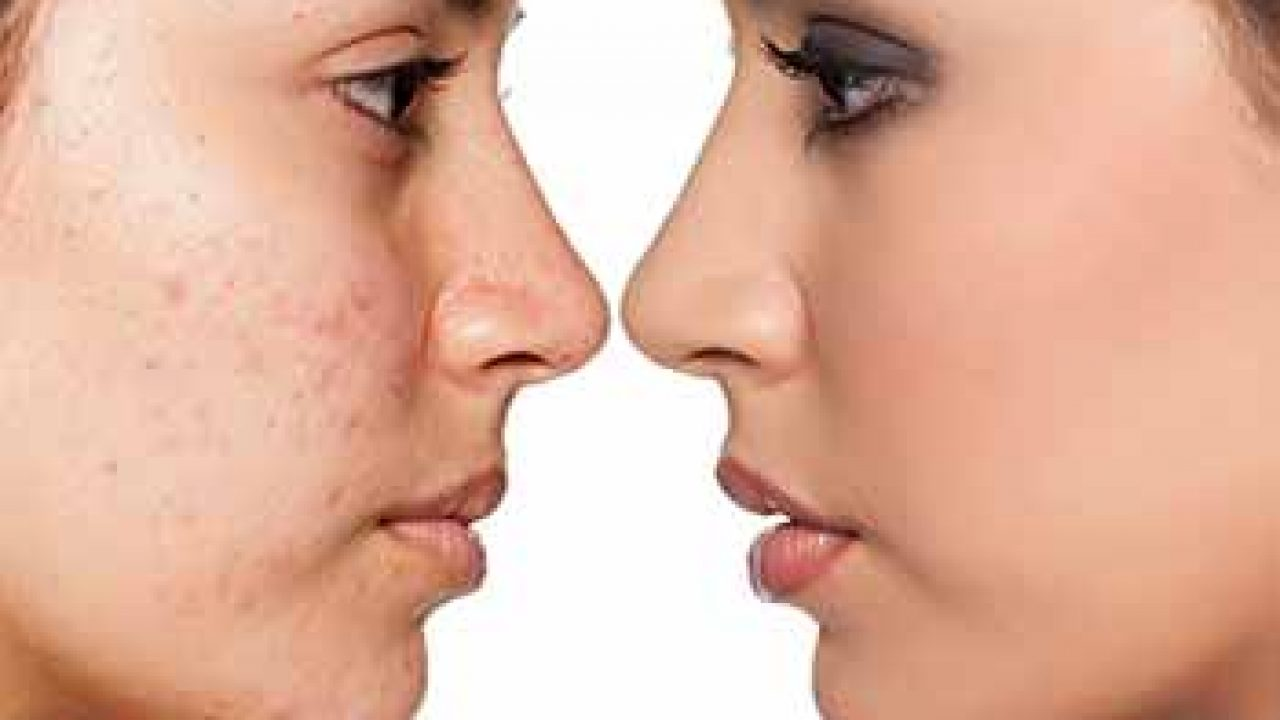 Treatment For Acne Scars Chagrin Falls Acne Scars Laser Treatment