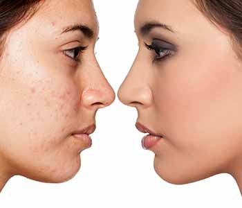 Enjoy laser treatment for acne scars in the Chagrin Falls, OH area