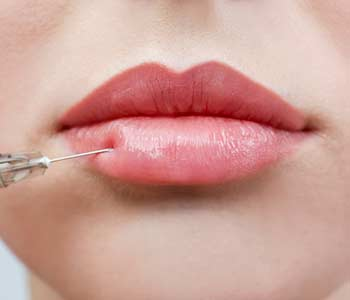 Juvederm treatment applying for lips