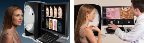 Visia 6 Skin Analysis